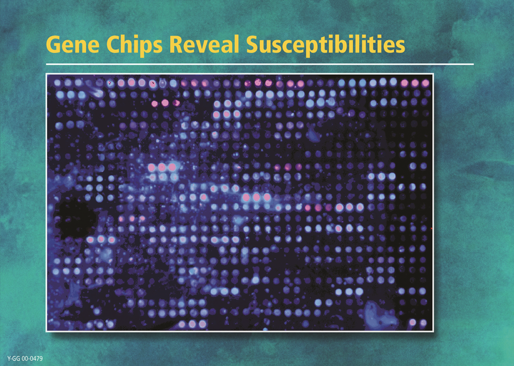 Gene Chips Reveal Susceptibilities
